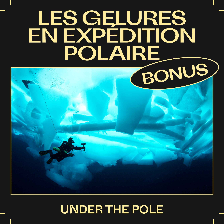 Bonus E40 — Les gelures en expédition polaire avec Under The Pole