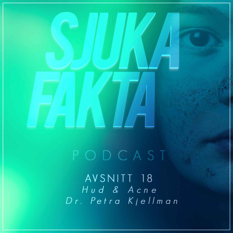 Myter om Hud & Akne - Dr. Petra Kjellman