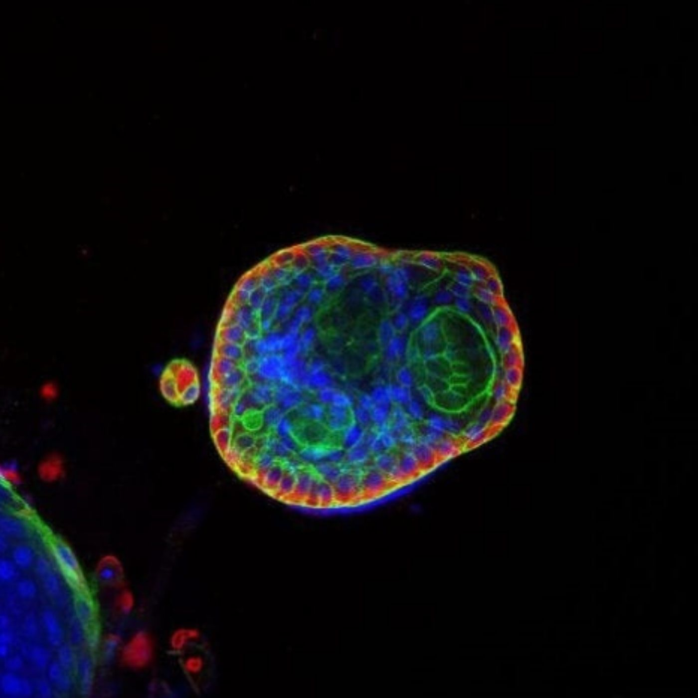 Organoids: advancing drug discovery and cancer research