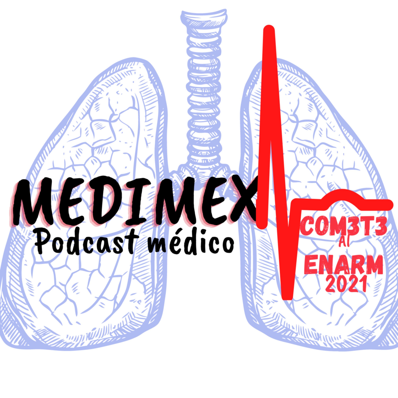 Exudado vs Trasudado agüita pulmonar | ENARM21