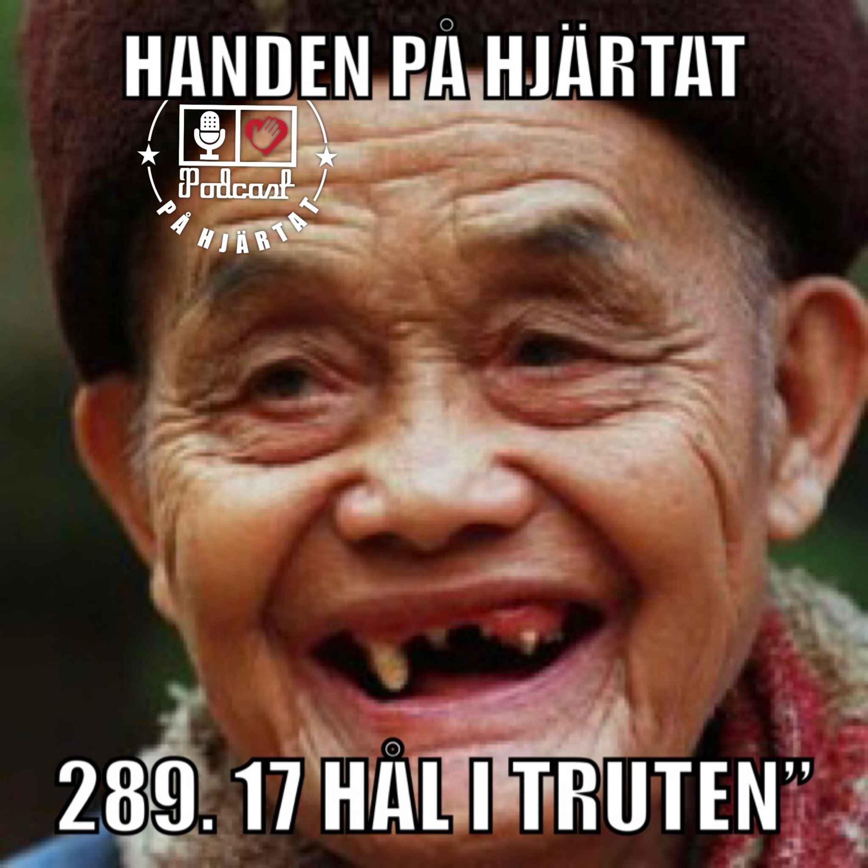 """289. 17 HÅL I TRUTEN"""